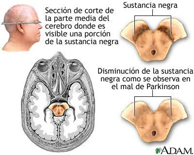 sindrome de hakim y adams pdf