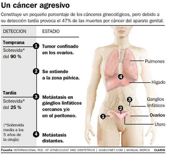 Lo Que Debes Saber Sobre El Cancer De Ovario Una Enfermedad